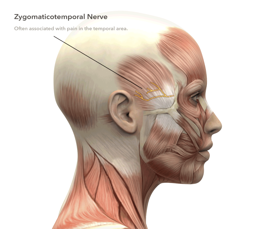 Migraine Surgery Doctors Are Here To Help Located In