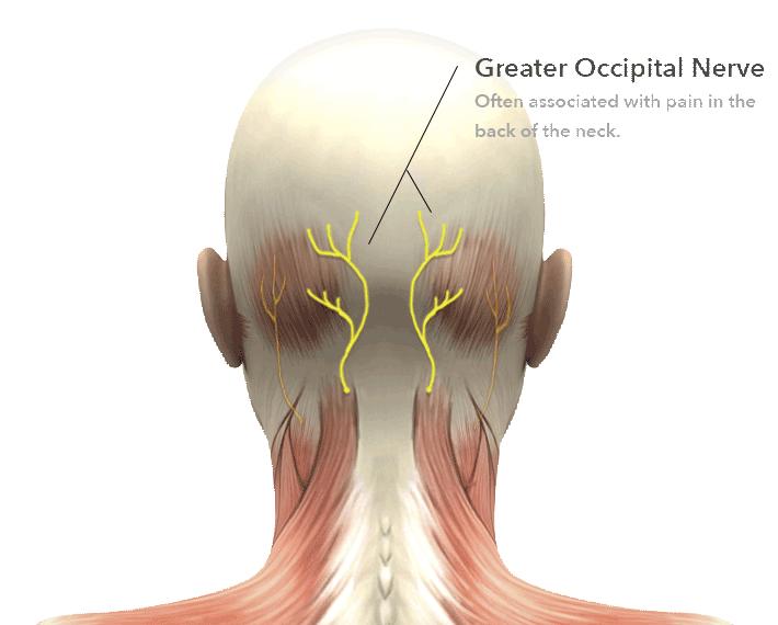 zone3_greater_occipital